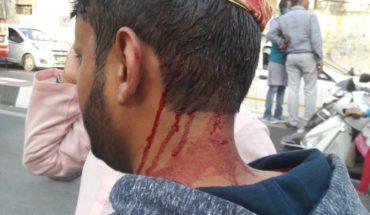 Lucknow-आम आदमी पार्टी ने लखनऊ में जमकर किया विरोध प्रदर्शन,पुलिस ने की लाठी चार्ज Soni News